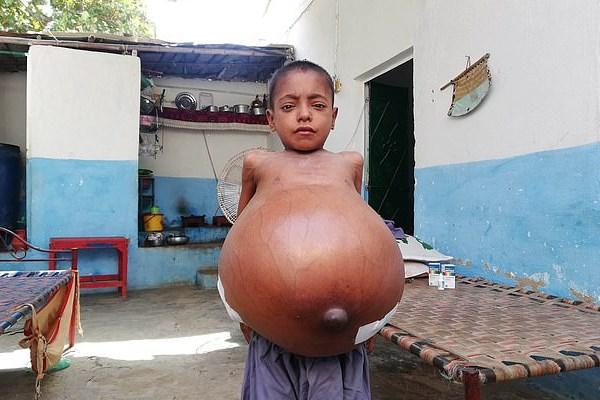 بیماری نادر پسر ۹ساله +عکس