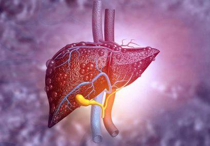 بیماریهای کبدی علتها و علائم