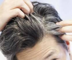 روش های مقابله با سفیدی مو