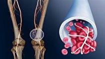 نشانه های هشدار دهنده لخته شدن خون در بدن