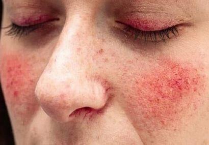 نشانه های بیماری روزاسه چیست؟ + روش درمان