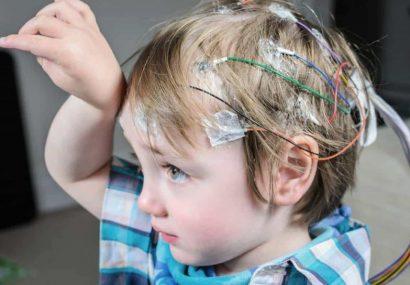 علت تشنج در کودکان چیست؟