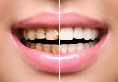 درد دندان؛ علل، تشخیص و درمان انواع آن