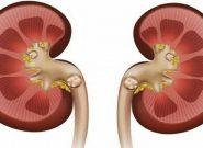 علائم رایج سنگ کلیه چیست؟