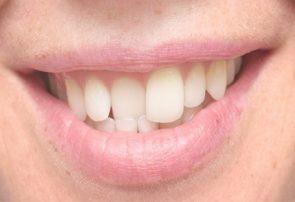 عوارض رعب آور تراکم و فشردگی دندانها به یکدیگر